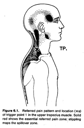 diagram of headache caused by the trapezius